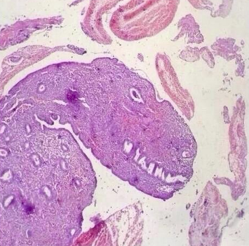 dinosaurslide